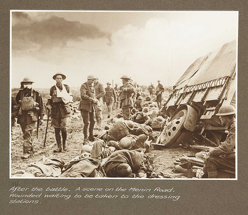 first world war wounded photo